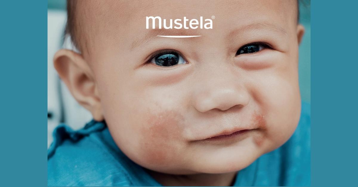 Kako njegovati atopičnu kožu kod djece?